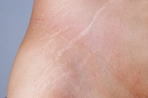 What is the Best Stretch Mark Removal Cream?