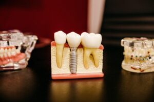 Reasons Why You May Need To Get A Dental Crown